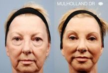 Blepharoplasty - Eyelid Surgery / Cosmetic eye procedures and blepharoplasty before and after photots