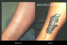 Tattoo Removal / Tattoo Removal before and after photos