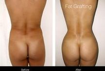 Brazilian Butt Lift / Brazilian Butt Lifts involve taking fat from other areas of the body and transplanting it to the butt for a rounder and fuller appearance. See before and after photos of Toronto patients at SpaMedica.