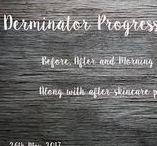 Derminator Progress Pictures
