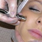 micro & hydrodermabrasion