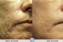 "Before & After - NeriumAD Formula / NeriumAD users take their ""before"" and ""after"" pictures of their Real Results and submit them to us. Submit yours to realresults@nerium.com."