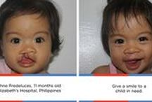 Our Work / See Smile Train's impact through some of our favorite before and after pictures!
