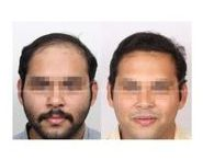 FUE Hair Transplant: Results & Before and After | HairMD, Pune / FUE results, FUE hair transplant results, FUE before and after, hair transplant images, hair transplant photos, hair transplant results in India, Permanent HT, Successful hair transplant, Hair transplant timeline, after 7 days, after 15 days, after 21 days, weeks, months