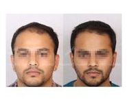 Male Hair Loss: Results & Before and After | HairMD, Pune / hair loss pictures before after,male pattern baldness images,mesotherapy for hair loss before and after, hair regrowth male before after, male hair loss timeline,prp hair loss before and after,male hair loss results, dermaroller for hair loss before and after,microneedling hair loss results before after, male hair loss results,low level laser therapy hair loss before after, hair loss timeline