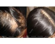 Alopecia Areata: Results & Before and After | HairMD, Pune / alopecia areata pictures, alopecia areata beard before and after, alopecia areata treatment results, alopecia pictures, alopecia totalis before after, alopecia universalis before after, bald spot before and after, alopecia children pictures, alopecia areata regrowth pictures, alopecia areata before and after