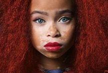 Vitiligo & Albino beauties ++