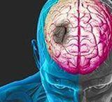 mozgova-mrtvica/ / http://horami.sk/zdravie/zdravie-telo-strava/