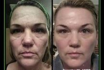 Beautiful Skin / My favorite products & beauty treatments.  / by Stephanie Sterling
