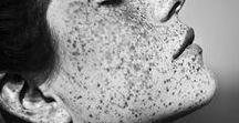 ❝ Freckles ❞