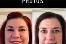 Not So Simple Weight Loss / Posts from the Not So SImple Weight Loss at http://myweightloss.simplifymommyhood.com. All about my struggle with obesity, weight loss journey and weight loss surgery.