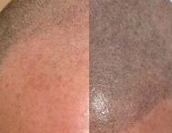 3D Scalp Pigmentation / Investing an hour or two of your time can make you look and feel better for years to come. We provide scalp pigmentation services to both MEN and WOMEN.