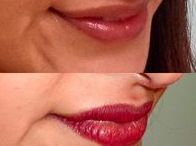 3D Lip / A great alternative to lip injections, our 3D lip procedure uses 3 colors to create lips that have more volume and definition.