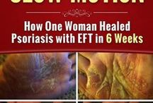 Psoriasis Help /  Hello, I'm Dr. Annette Vaillancourt and I want to share with you an amazing case-study of how my cousin, Carol, healed the #psoriasis in the palms of both hands in only 6 weeks. www.MiracleInSlowMotion.com