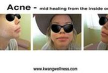ACNE CURE / Something can be done about the horrible acne that is harmful to our personalities and self esteem
