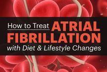 AFib and heart health