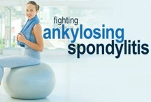 Ankylosing Spondylitis Treatments / Ankylosing Spondylitis is an autoimmune disease that causes chronic inflammation in the spine and sacroiliac joint. Eventually the joints of the spine may fuse together, causing immobility. Learn more about Ankylosing Spondylitis in the RxWiki Condition Center: http://www.rxwiki.com/conditions/ankylosing-spondylitis The drugs listed here are FDA approved treatments available by prescription. Consult your doctor to determine if they are a good treatment for you. #RxWiki #AnkylosingSpondylitis