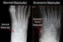 """F"" is for Foot Surgery (to remove the Accessory Tarsal Navicular and reattach the Posterior Tibial Tendon to the Navicular)   / I need to have this surgery to remove the Accessory Tarsal Navicular and reattach the Posterior Tibial Tendon to the Navicular       / by Lisa Dee"