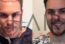 Before and After / Before and After Contact with hair transplantation coordinator on WhatsApp for more information; +905388817099 www.hairtransplantationatturkey.com #hairtransplant #hairtransplantation #fue #before #after #turkey #istanbul
