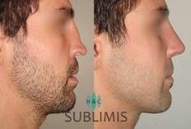 Rhinoplasty / Rinoplastia / Antes y despues de una cirugia plastica de nariz o rinoplastia. Before and after nose surgery or rhinoplasty