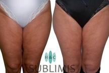 Hilos Tensores / Antes y despues de colocar hilos tensores en la cara, gluteos, piernas, rodillas, panza y abdomen