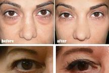 Eye Bags / Welcome to our Eye Bags Board!   Eye, Eye Bags, Eye related any problem solution is available here.    Don't hesitate to check out details form our site.  from here: https://naturalbeautic.com/