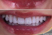 Estética / Nuestros mejores casos de estética dental