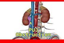 Urology Surgery / All Urological Surgeries information