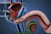 Urology Surgeries