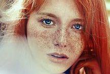 ...  freckles  ...