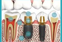 Dental Pins / This is a Group Board for Dentists and Dental related pins. To Join follow http://pinterest.com/DentistIdentity/ and email your main board link to Elliot Pearson elliot(at)dentistidentity(dot)com / by Dentist Identity