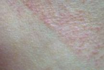 PMLE (Polymorphous Light Eruption) / PMLE or Polymorphous Light Eruption is the most common sun allergy. If you got a sun rash on your last holiday, chances are you suffer from PMLE. It affects 10 to 15% of North Americans.