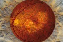 Eye Disease