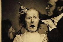 Duchenne's Electrophysiognomy