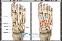 Lisfranc surgery/recovery / by Melody Edwards