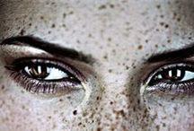 Freckles are natural killer.