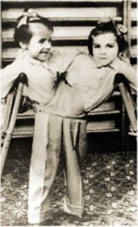 On a frozen Moscow morning in January 1950, Siamese twins, Masha and Dasha Krivoshlyopova were born. The delivery was by caesarian section. On awakening from the anesthetic, the mother was told her babies had died shortly after birth. This was a lie by the Soviet medical authorities. Instead, they took the girls away to a medical institute in the Moscow region and used them for experimentation and exhibit.