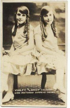 Siamese Twins Daisy & Violet Hilton born 1908