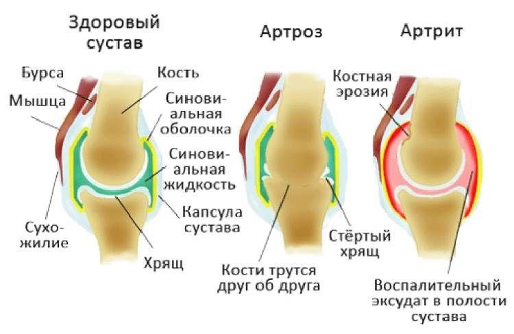 конечно канешна, ходьба при артрите коленного сустава этом что-то