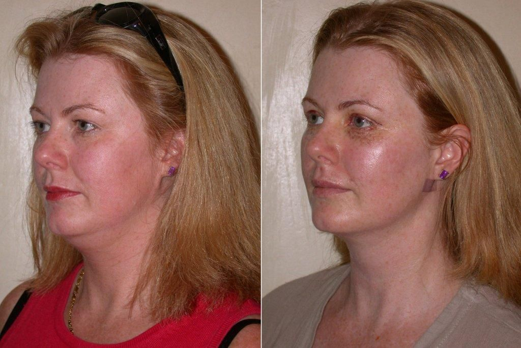 Pin On Face Liposuction Liposuction Before And After