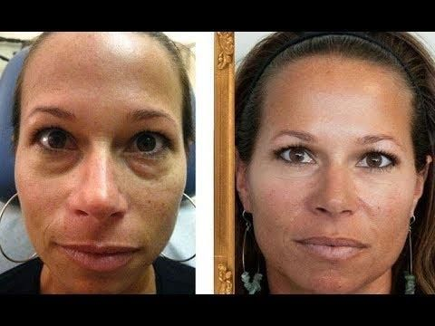 Get Rid Of Eye Bags And Dark Circles With Simple, Painless ...