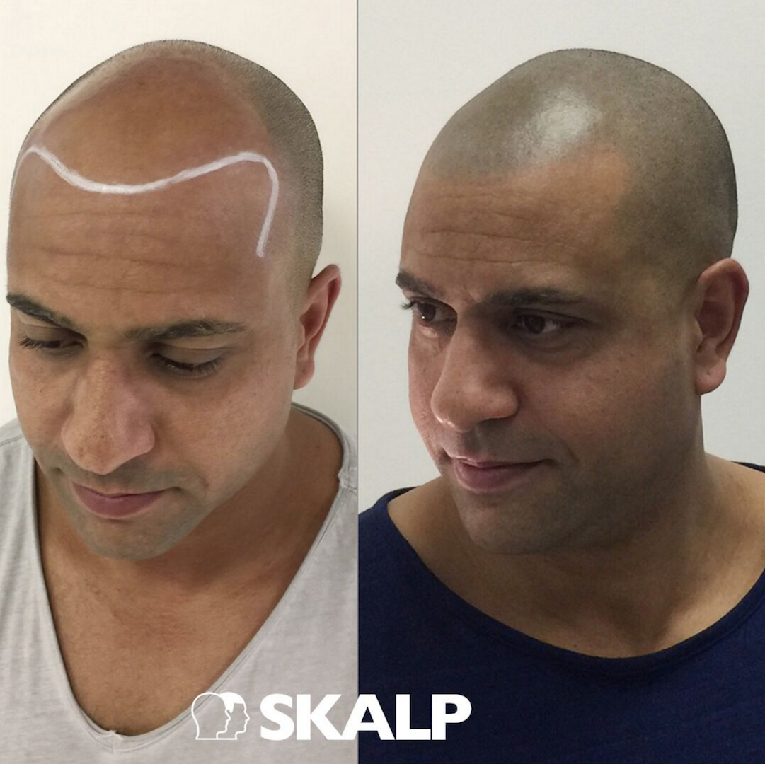 Find the solution to thinning hair receding hairlines and for Head tattoo hairline