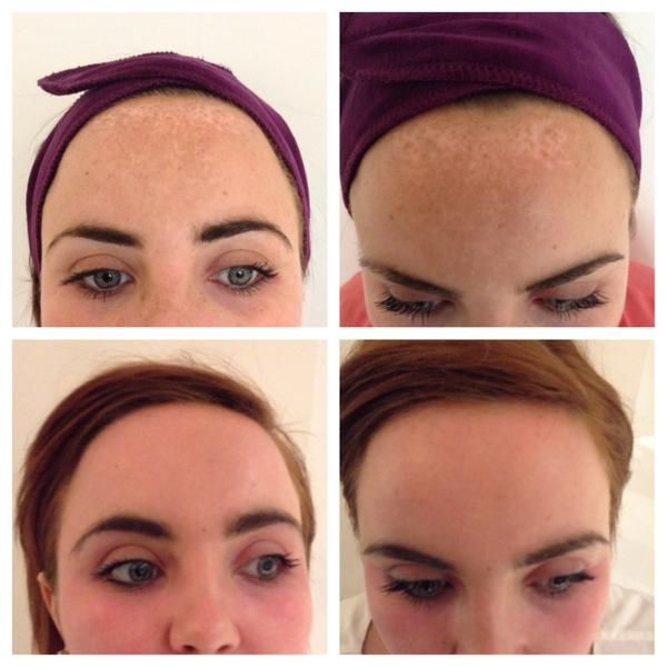 """This is what makes our job so enjoyable! We love seeing people conquer skin concerns with the help of #ZOSkinHealth & #ZOMedical products. """"Look at these amazing results. 10 years worth of pigmentation removed through ZO products alone!"""" -Radiance MediSpa"""