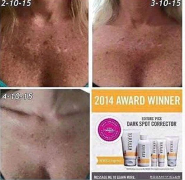 The Reverse is meant for sun damage, dullness and brown spots. The results are absolutely amazing , literally reverse damage done by the sun.Do this for yourself, dont wait! camillam@myrandf.com