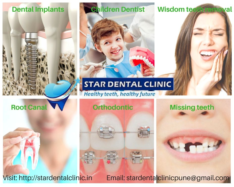 Star dental clinic provide number of services like