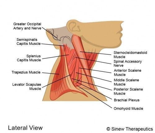 Car Accident Headache Symptoms