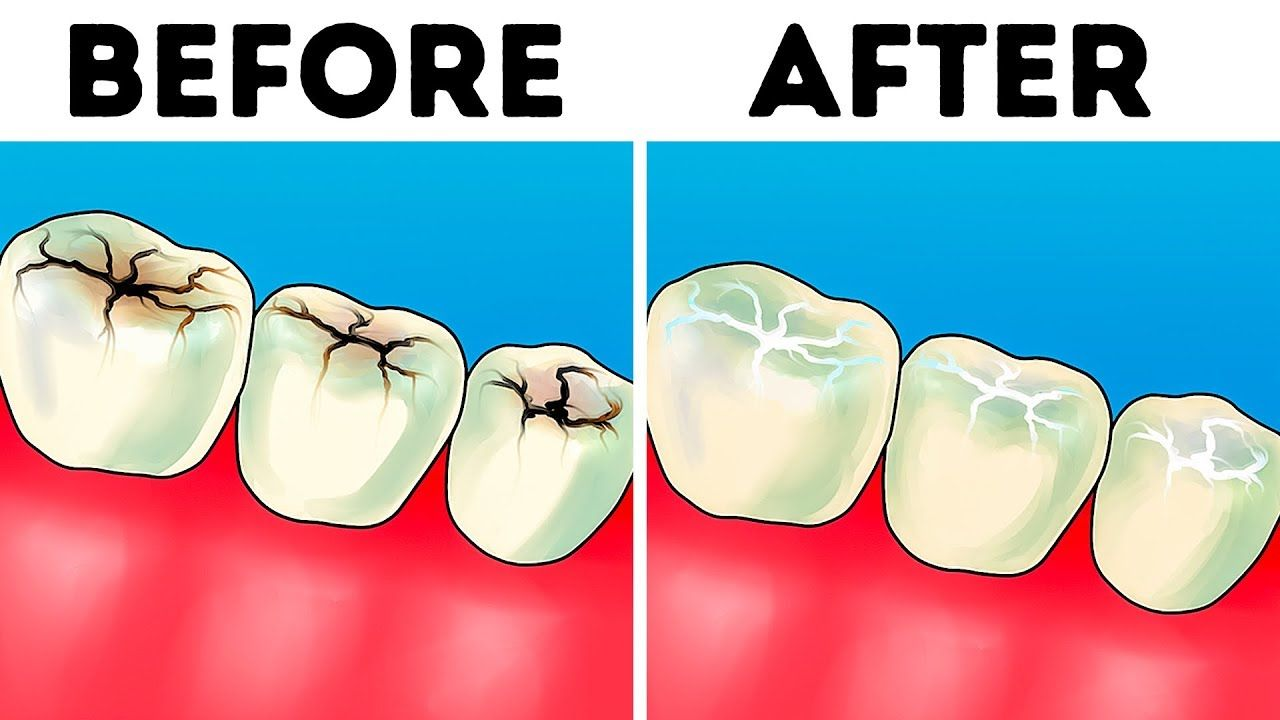 8 easy ways to make your teeth whiter at home in 2020