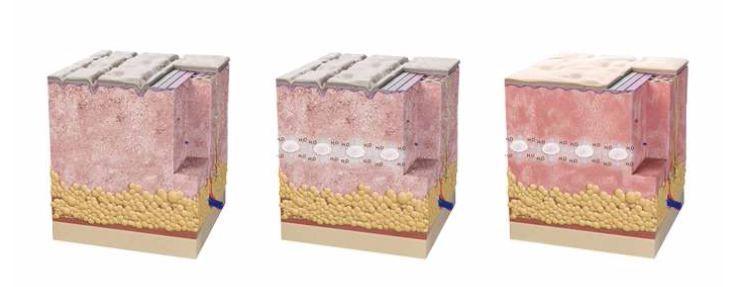 Skinboosters são medicamentos injetáveis aplicados na pele pelo médico com o objetivo de melhorar a hidratação profunda da pele e estimular a formação de um novo colágeno, melhorando rugas e a elasticidade da pele. #dermatologiaesaúde #especializadoemdermatologia #cuidadoscomapele #rugasnuncamais #dicasdebeleza #dermatologia #dermatologista #pelelinda # skinboosters #hidrataçãodapele #pelesaudável