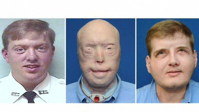 Patrick Hardison's face transformation in three stages