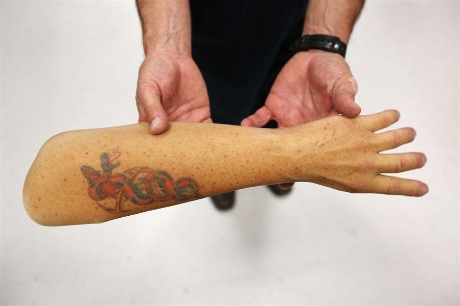 Wounded Prosthetic Sleeve